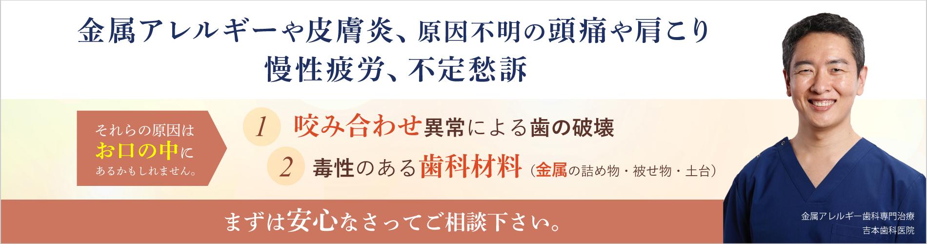 歯科金属アレルギー専門 セルコン ジルコニア 白い歯 咬み合わせ 香川県高松市