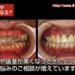 歯茎が黒くなってきた原因は金属です。